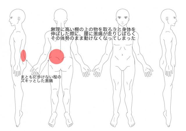 ぎっくり腰(その①)