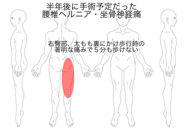 腰椎ヘルニア・狭窄症・坐骨神経痛(駒田)