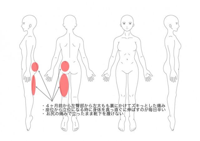 坐骨神経痛(その1)