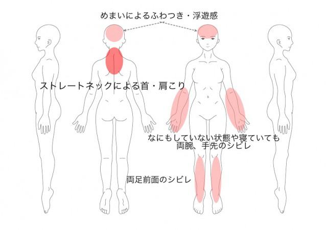 めまい・ふわつき・ストレートネック(加藤絹代)