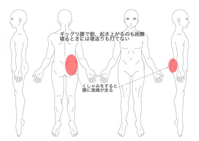 ぎっくり腰(その2)