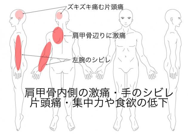 胸郭出口症候群(國枝)