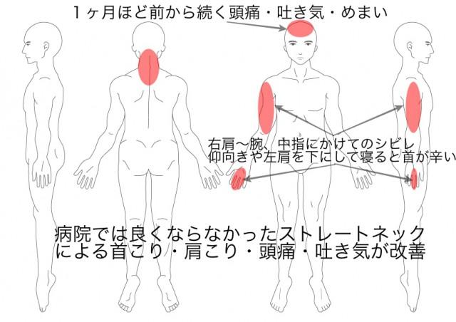 ストレートネック・頭痛・吐き気(池戸猛)