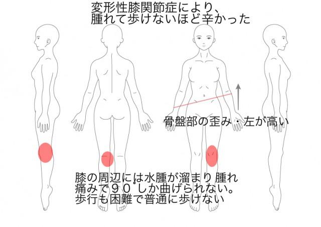 変形性膝関節症(西川裕子)