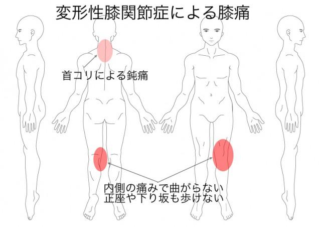 変形性膝関節症(中谷新一)