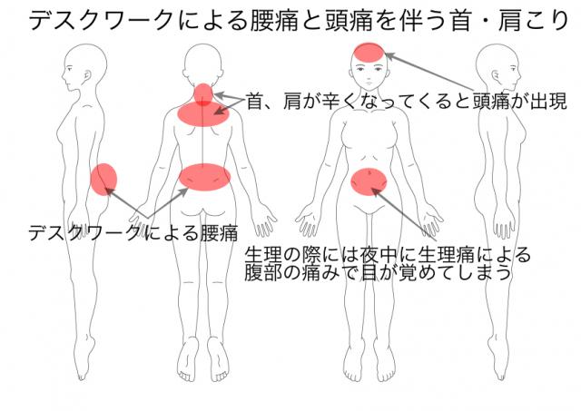 今西・娘(腰痛・頭痛)