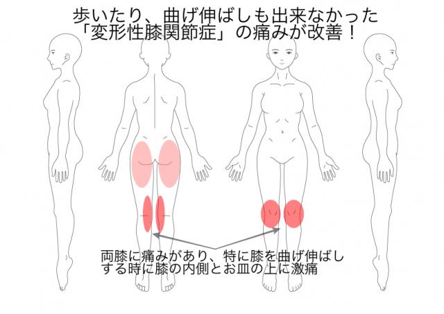 変形性膝関節症:多和田