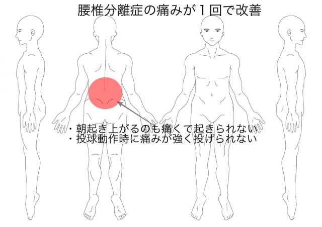分離症(伊藤くん)