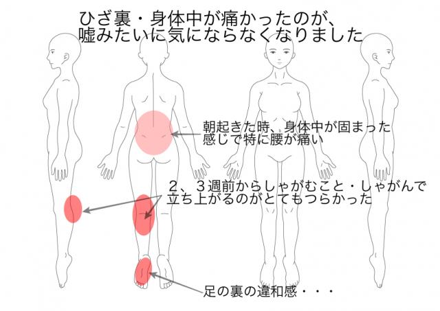 ひざの痛み:広瀬直美