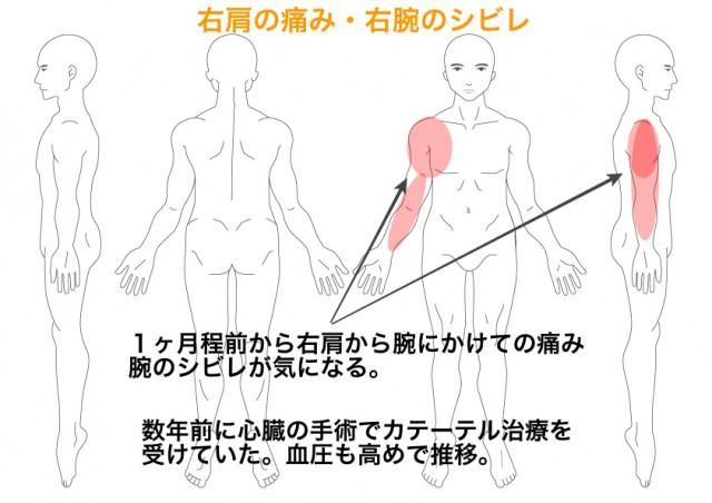 腕 痛い から 肩 が